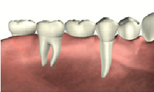 Bridges at West House Dental Practice