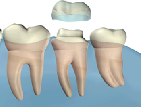 Crowns at West House Dental Practice