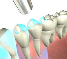 Root Canal Treatment at West House Dental Practice
