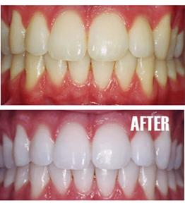 Teeth Whitening at West House Dental Practice